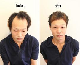 【実践М字ハゲ】美容師がすすめる薄毛で似合う髪型 М字ハゲ編
