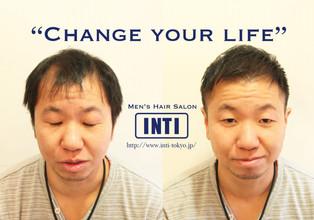 【薄毛メンズ】実録!全体的に薄くなり透ける頭皮をヘアスタイルでカバーする