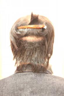 【植毛】自毛植毛を検討している方のカットのタイミング