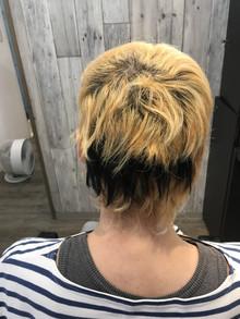 【植毛 検証】現役美容師が植毛手術後に装着する『ヘアシート』をつけて1ヶ月生活してみた。