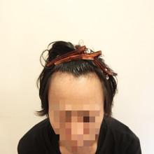 【自毛植毛】〜FUE法〜手術後1ヶ月のヘアスタイル提案