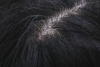 【薄毛 対策】美容師が教える!増毛を検討する人が知っておきたいメリット&デメリット