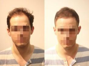【頭頂部 薄毛】薄毛に悩む外国人も驚いた!ヘアスタイルでこんなに変わる!