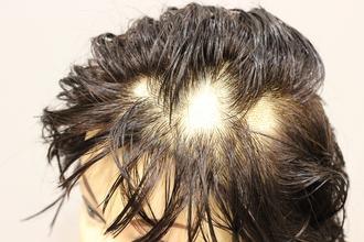 【円形脱毛症 髪型】カット&ヘアセット方法で変わる!美容師が教える簡単ホームケア!!!