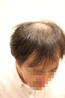 【薄毛 カット】前頭部(M)と頭頂部(O)が同時に薄くなってきたヘアスタイルをデザインする。