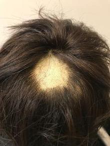 【円形脱毛】家庭で上手に隠す方法を現役美容師が検証!