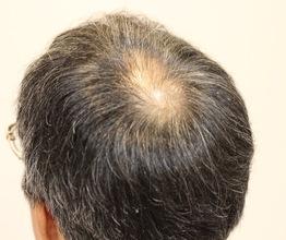 【O字 薄毛】ボリュームが出にくいサラサラストレート毛を爽やかにカット