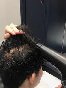 【O字 つむじからの薄毛】頭頂部が薄くなってきた時のおすすめの乾かし方を現役美容師がレクチャー