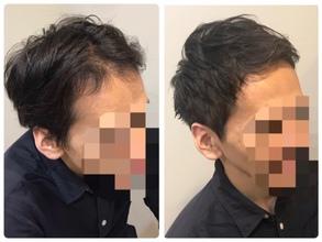 【U字 薄毛】下ろすと「すだれ前髪」になってしまう方へ。前髪を程よく上げるヘアスタイルのご提案。