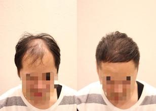 【原因 薄毛】薄毛の原因はヘアデザインにあった!!!!?