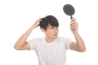 【AGA 20代】実は沢山います!AGAでは無く、びまん性脱毛症の20代男性群!!!