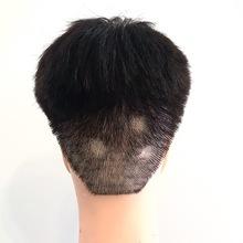 【円形脱毛症 刈り上げ】刈り上げ部分に円形脱毛ができた場合の対処法提案。