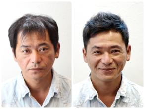 【M字 髪型】〜前編〜まばらに残った前髪が透けてしまう方にオススメの髪型あります!