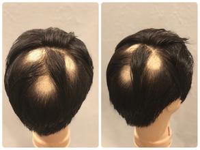 【円形脱毛症 髪型】頭頂部にできた円形脱毛のカバー方法をレクチャーします