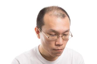 【増毛 薄毛】知っておいた方が良い男性の増毛(ヘアエクステ)の注意点