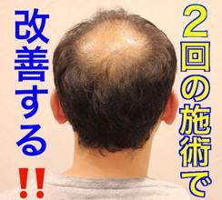 【AGA 頭頂部】O字のお悩みを2回の施術でボリュームスタイルに改善する!!