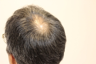 【O字型 薄毛】お客様が実際に使用中の育毛剤で本当に効果を感じている薬とは?