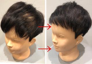 【円形脱毛症 改善方法】毛流れをカットで変えることが薄毛カバーの鉄則