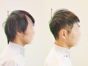 【M字 髪型】M字型薄毛をカバーするスタイルの比較と解説