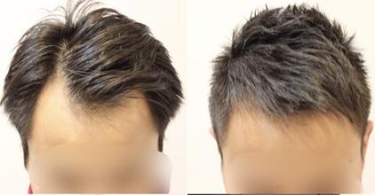 【M字 髪型】スタイリング剤より大切⁉ドライヤーのかけ方