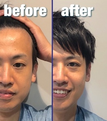 【M字 前髪】自分の生え際を分析して前髪カットをオーダーしてみよう!