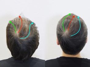 【U字 スタイリング】毛流れを利用した薄毛カバーセットのポイント