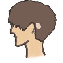 【円形脱毛症 種類】7種類の円形脱毛症
