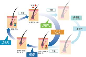 【薄毛 AGA】ヘアサイクルを知りベストの髪型をキープしよう!