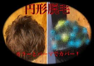 【円形脱毛症 髪型】〜実証!パーマやカラーで円形脱毛発症部分はカバー出来る!?〜