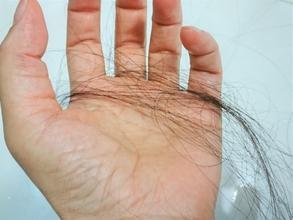 【薄毛 脱毛】髪の毛が1日にどれくらい抜けているかご存知ですか?