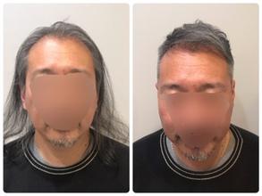 【薄毛・髪型】40代男性、薄毛が気になりだした方のヘアスタイルチェンジ