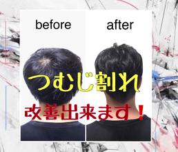 【頭頂部 薄毛】〜バレない!割れない!つむじ割れ改善法!〜