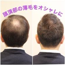 【O字 髪型】周りの視線が気にならない!頭頂部の薄毛をオシャレにカバー!
