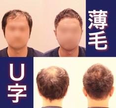 【U字 髪型】U字型薄毛カバーのスタイル比較と解説
