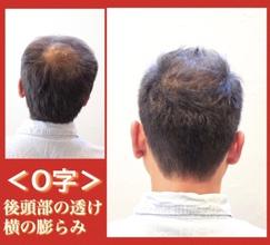 【O字 髪型】〜後編〜頭頂部が透けて横ばかり膨らんでしまう方にオススメの髪型あります!