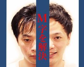 【M字 髪型】気になるM字。知るべきは髪型+α。