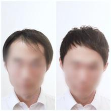 【M字 髪型】透けてどうしようか迷う前髪を改善!
