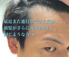 【薄毛 スタイル】どうしても前髪が薄く見える。それは前髪だけのせいではない!