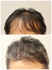 【薄毛 直毛】直毛で前髪がパカっと割れて難しい人 おすすめ方法