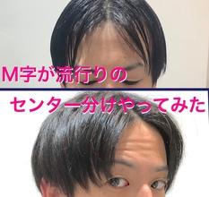 【薄毛 前髪】いい時代が来た!最近流行の「センター分け」はM字が分かれにくい!