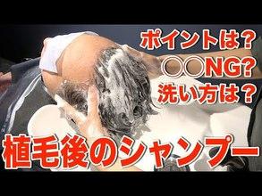 【動画】植毛後に気をつけるケア&シャンプーの方法を薄毛専門美容院の美容師が教えます!