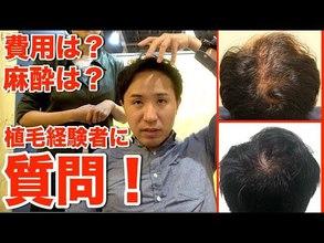 【動画】やってよかった?植毛を経験された方に実際に色々きいてみた!(費用、病院選び、職場復帰)