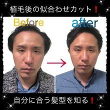 【薄毛 植毛】植毛後、自分に似合う髪型を見つける!