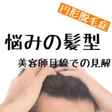 【円形脱毛症 髪型の悩み】実際のところどうなのかお伝えします