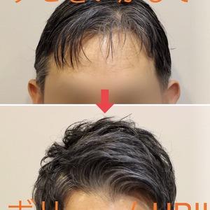 【薄毛 頭頂部】クセを見極めカットすることで複数の悩みを解消させるヘアデザインに