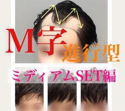 【M字 セット】M字が進行してきても、諦めずに自分に合ったスタイルを見つけよう!