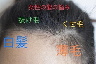 【薄毛 女性】未だにはっきり解っていない女性の薄毛について