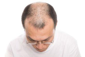 【植毛 AGA】コスパが良いのはどっち??自毛植毛 VS AGA治療薬