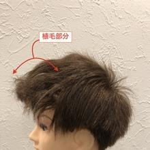 【植毛後 髪型】植毛部分、思わぬくせ毛とうまく付き合う