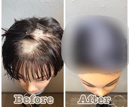 【円形脱毛症 髪型】男らしいヘアスタイルお伝えします!